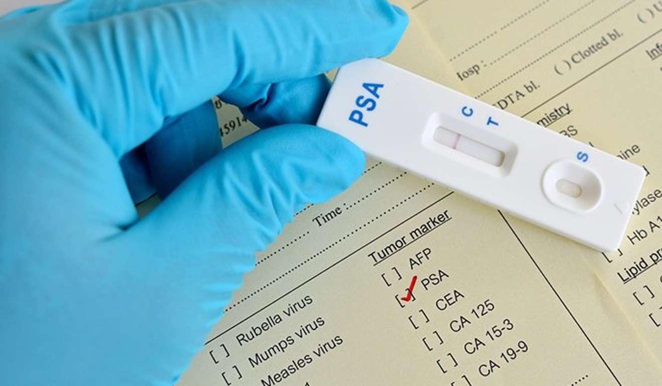 Does viagra affect psa test