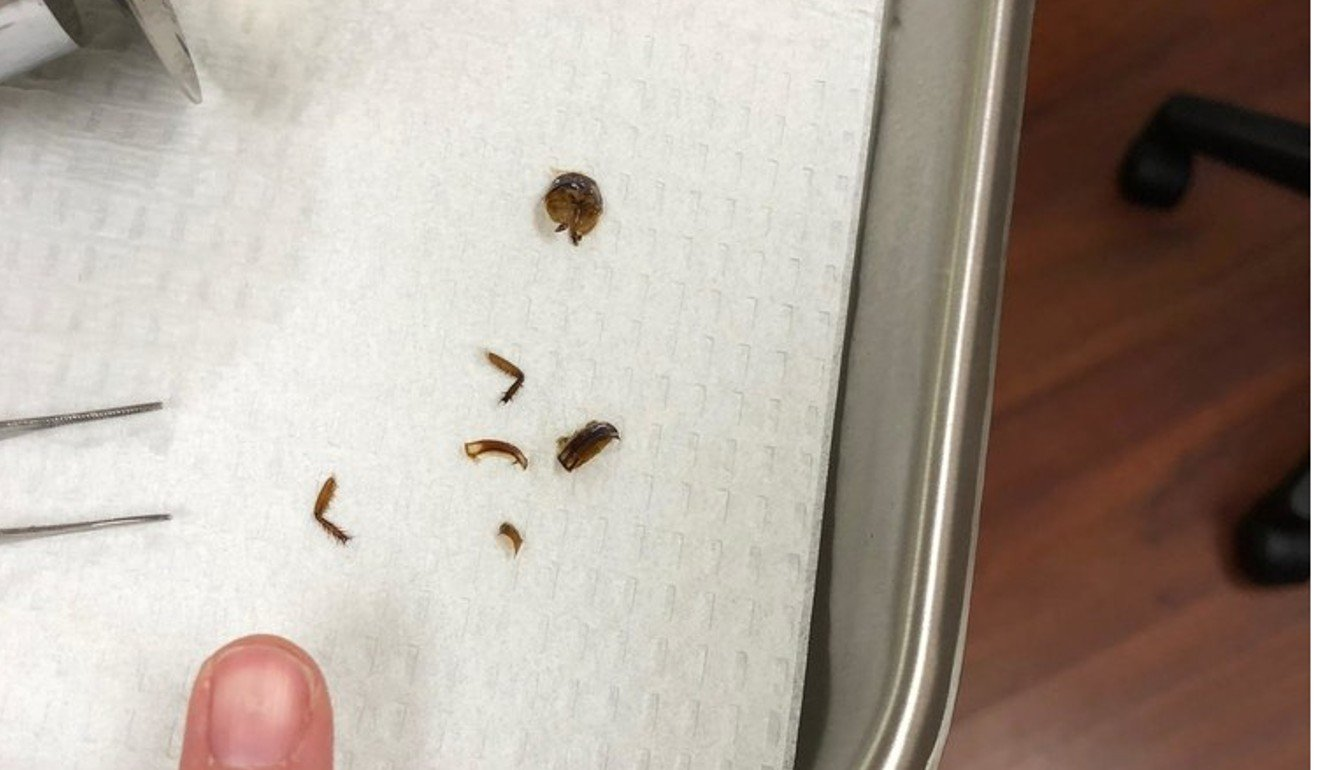 The legs of a cockroach pulled from Katie Holley's ear. Photo: Katie Holley