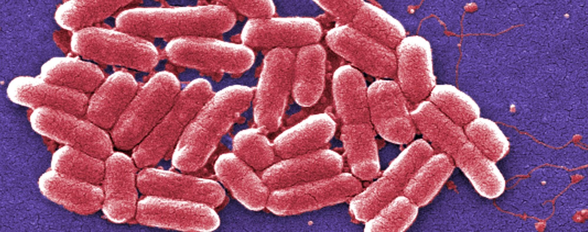 E. coli bacteria. Picture: AP
