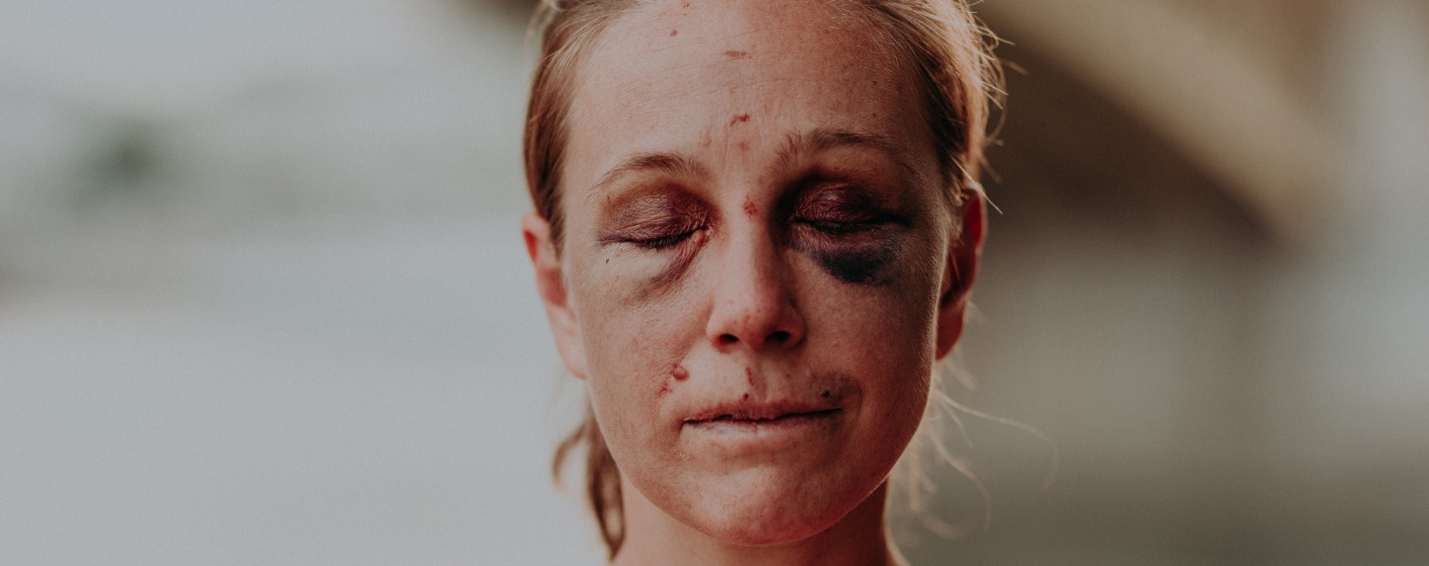 Hungarian ultramarathoner Viktória Makai shows her injuries after being attacked while out running. Photos: Sportágválasztó
