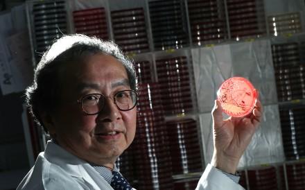 Microbiologist Dr Raymond Yung Wai-hung of Hong Kong Sanatorium and Hospital holding a bacterial culture. Photo: Nora Tam