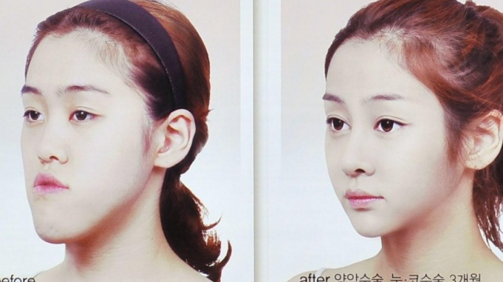 Risky double-jaw surgery South Korea's latest cosmetic fad | South ...