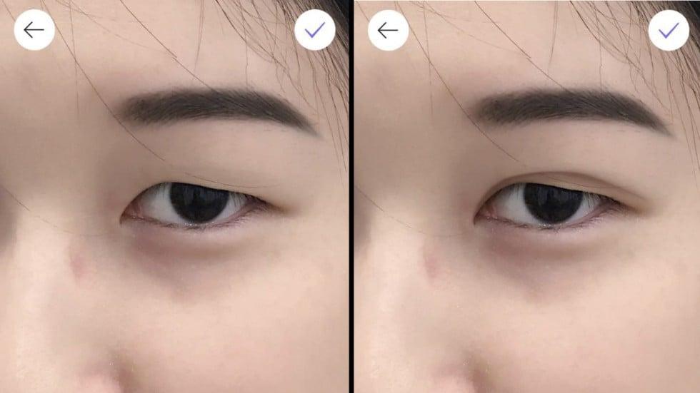 Asian eyelids surgery in toronto