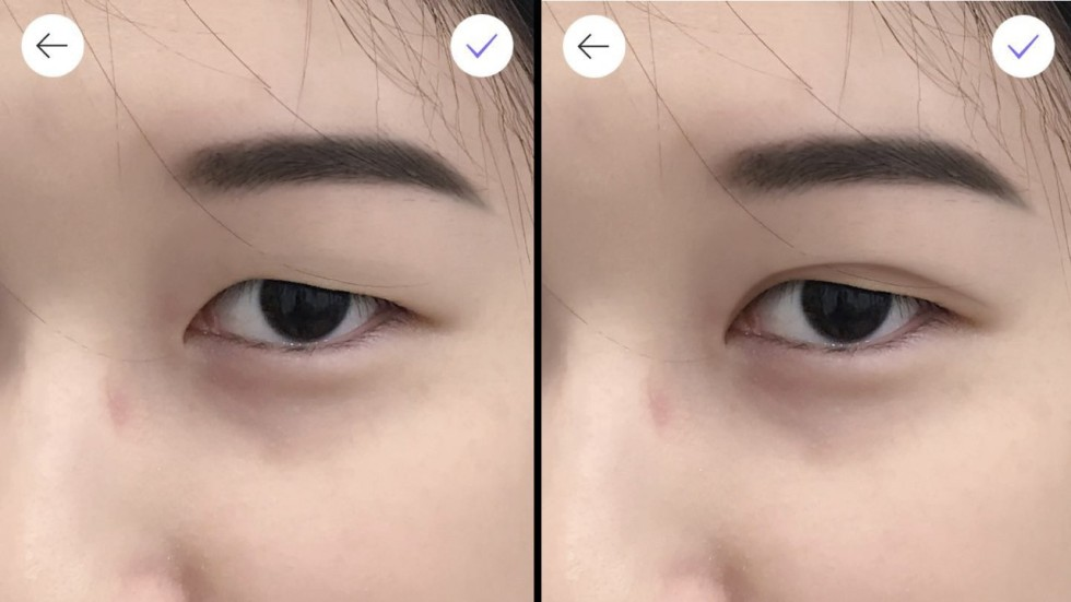 Why Double Eyelid Surgery Is On The Rise In Asia Rising Incomes And