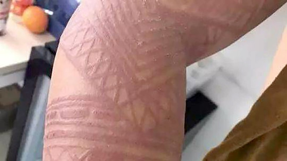 Bali Tourists Warned Fake Henna Tattoos Could Put Lives At Risk